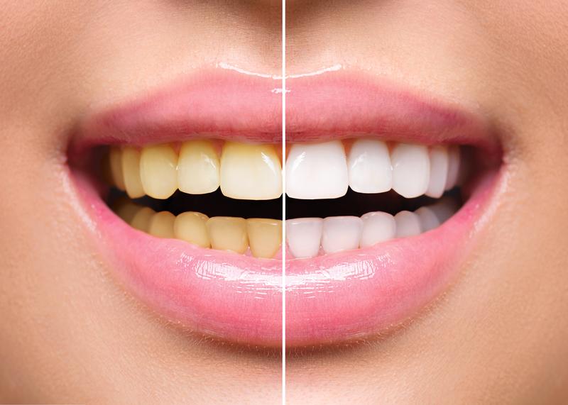 DentiVive Result